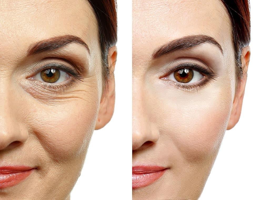 قبل و بعد مصرف ژل کربوکسی