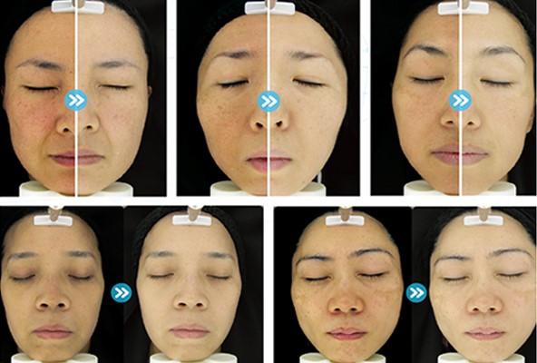 قبل و بعد از استفاده از ژل کربوکسی